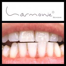 harmonieschiene-3